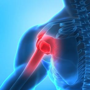 המחשה של כאב בכתף